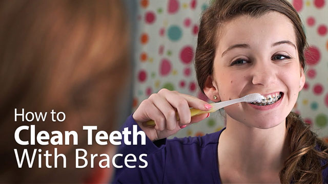 How to Clean Teeth With Braces.