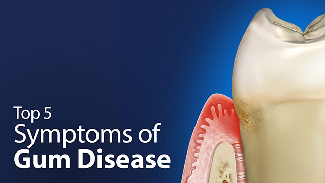 Top 5 Symptoms of Gum Disease.