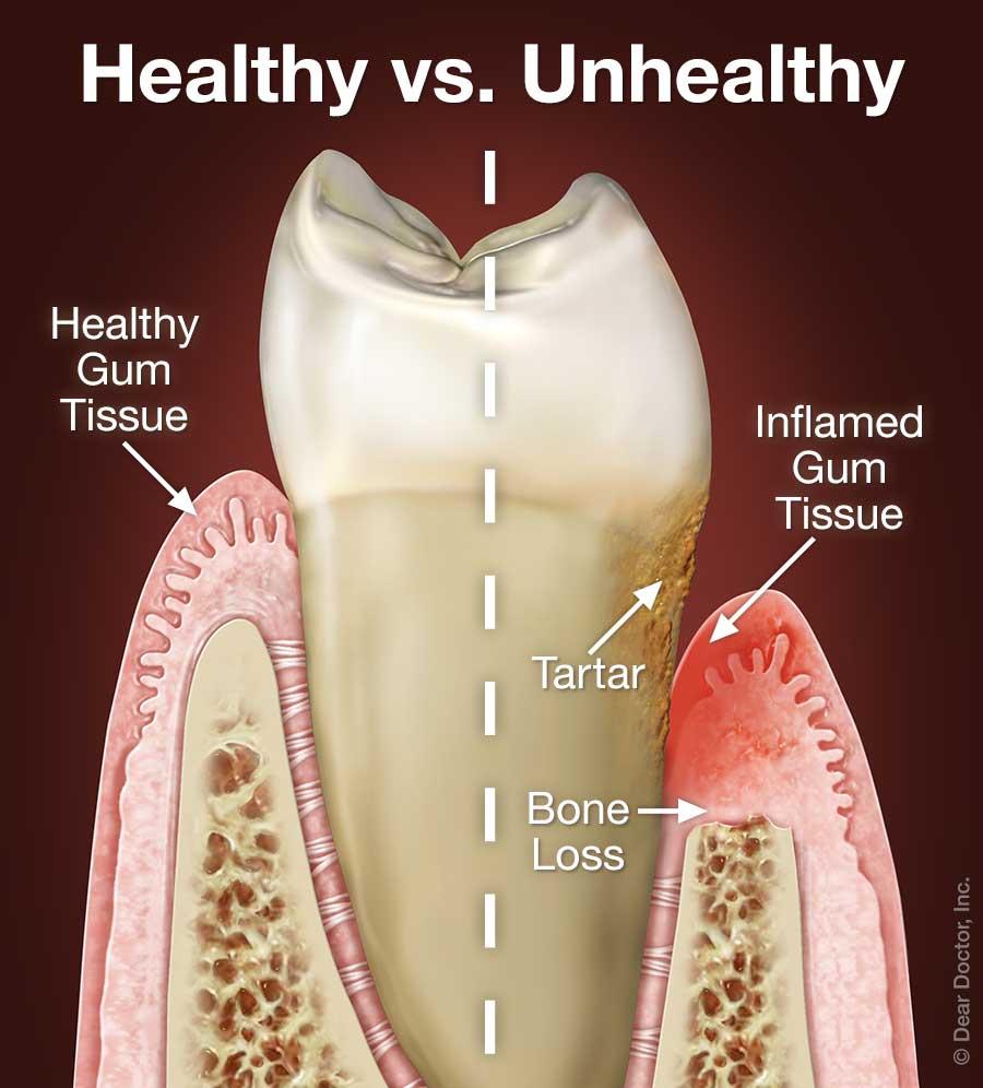 Periodontal Disease.