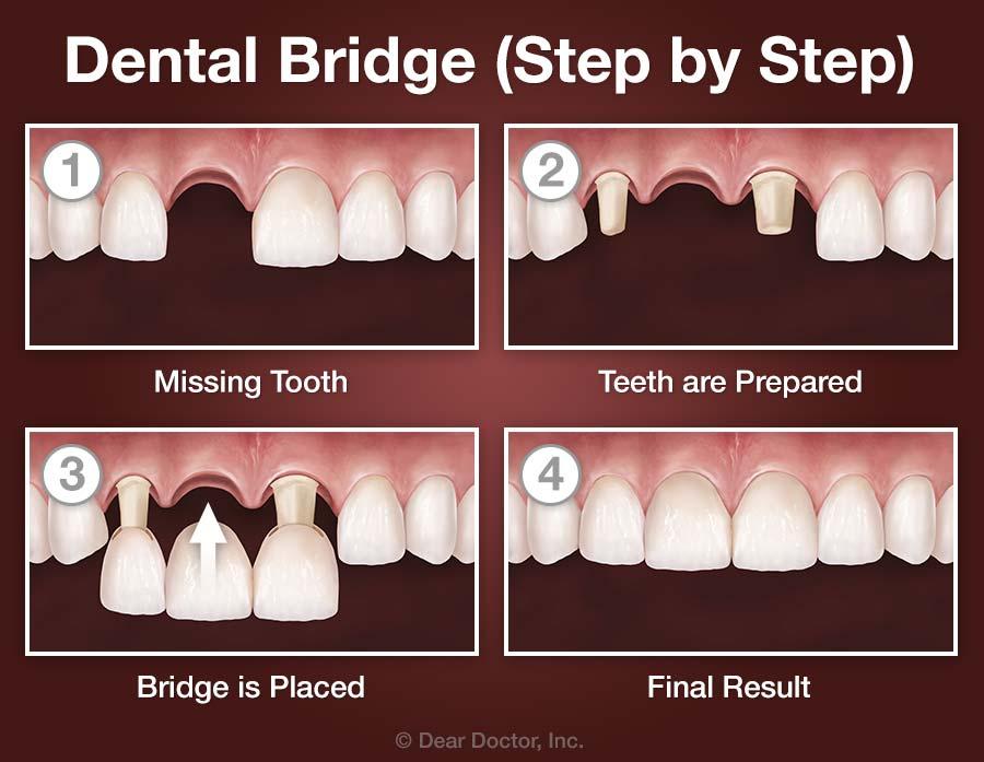 Dental Bridge - Step by Step.