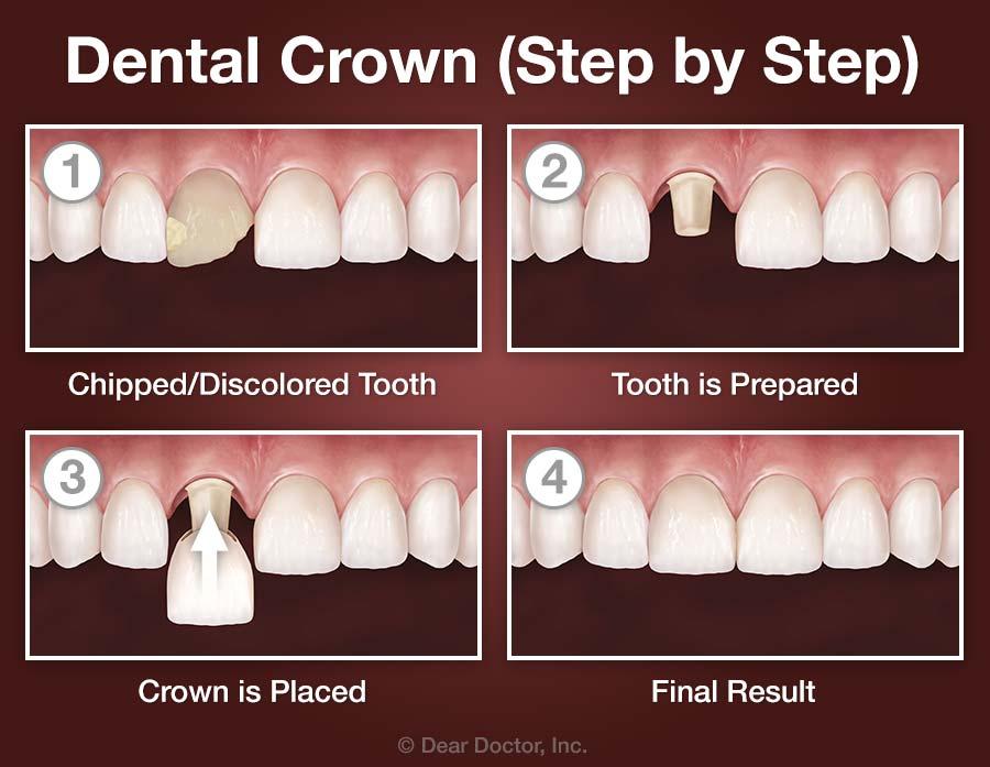 Dental Crowns - Step by Step.