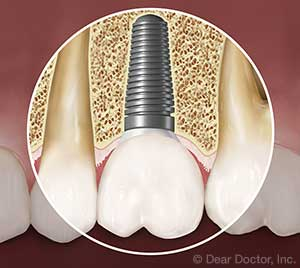 Dental Implants.