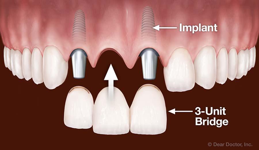 Dental Implants Replace Multiple Teeth.