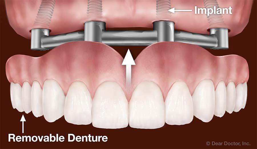 Dental Implants Support Removable Dentures.