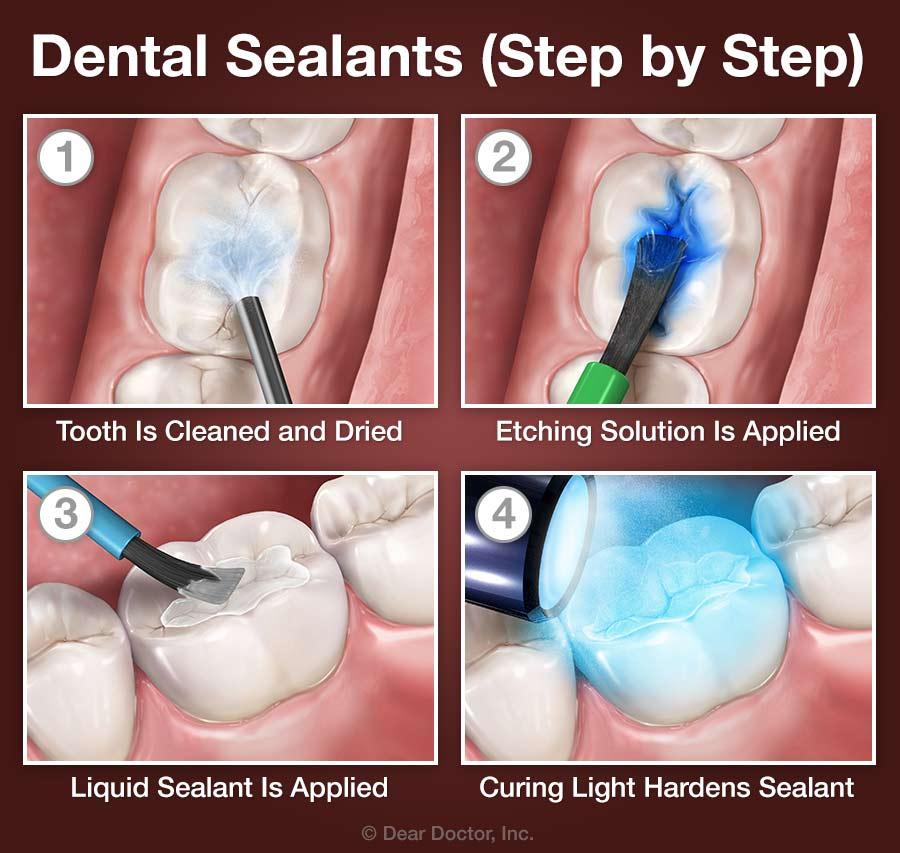 Dental Sealants - Step by Step.