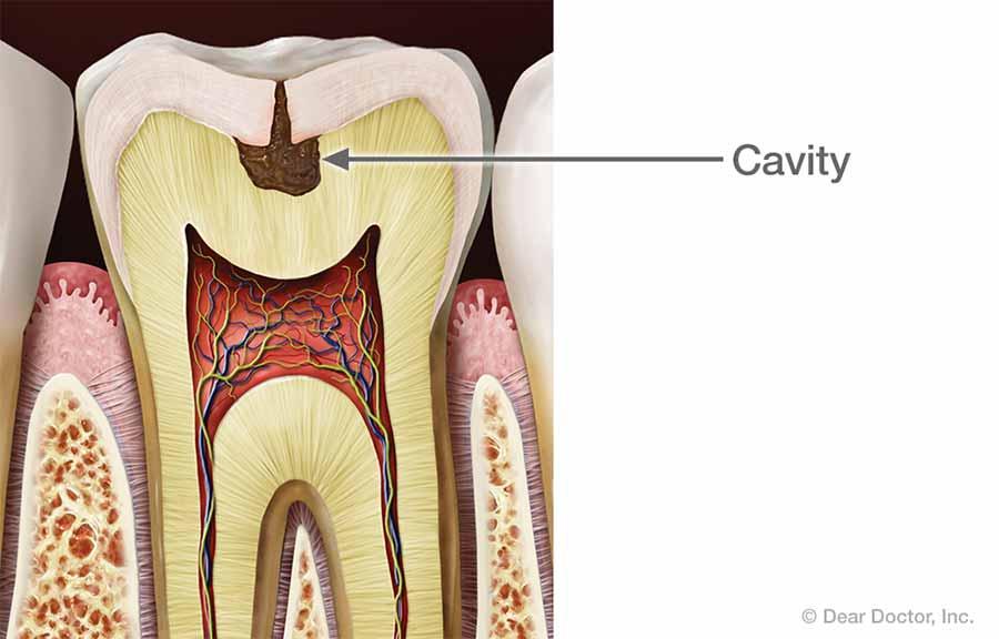 Cavity.