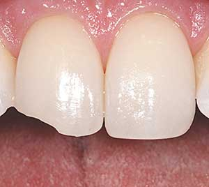 Tooth Bonding.
