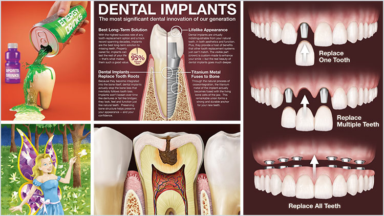 Dental Illustrations