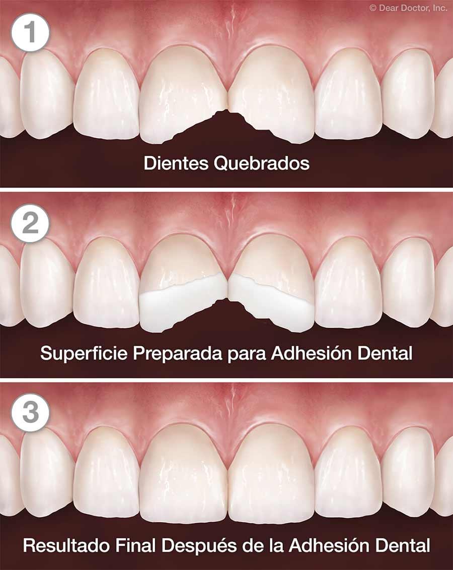 Adhesión Dental - Paso a Paso.