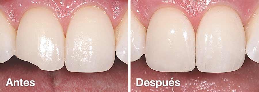 Adhesión Dental.