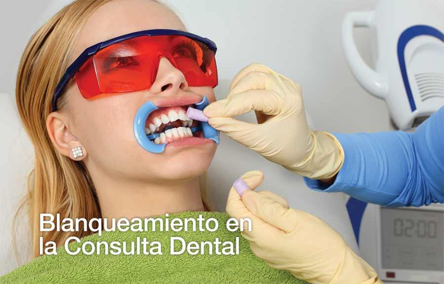 Blanqueamiento en la consulta dental.
