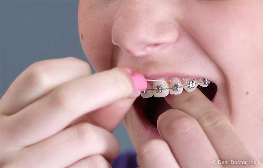 Aspectos Básicos del Uso del Hilo Dental.