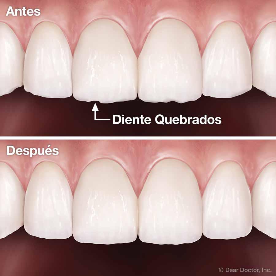 Contorneado y Remodelación Dental.