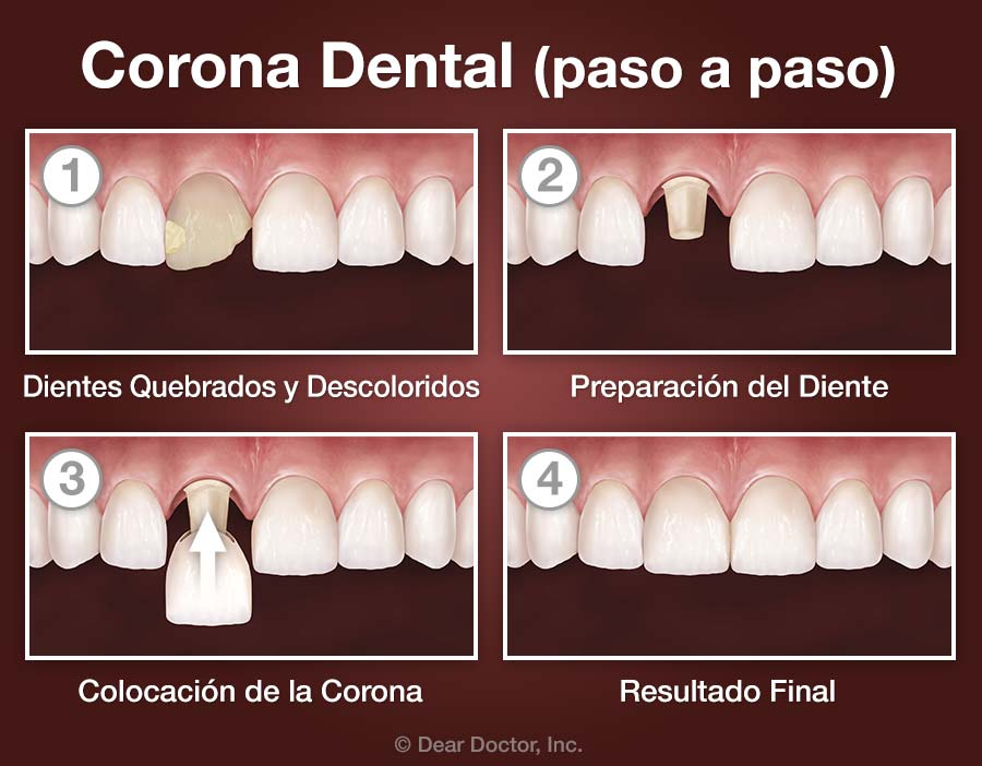 Corona Dental (paso a paso).