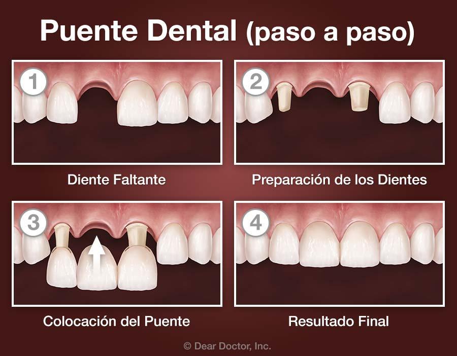 Puente Dental (paso a paso).