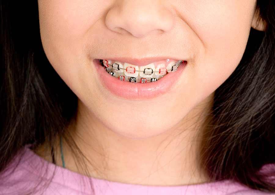 Cuidado de Ortodoncia en Adolescentes.