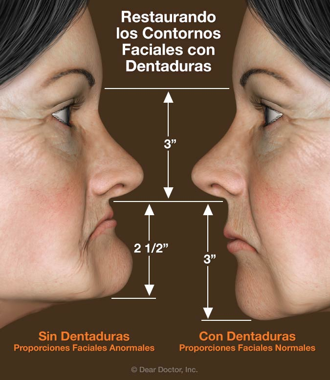 Restaurando los Contornos Faciales con Dentaduras.