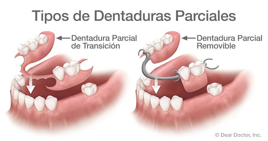 Tipos de Dentaduras Parciales.