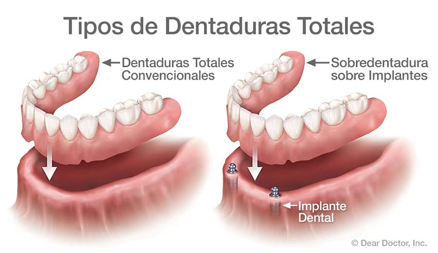 Tipos de Dentaduras Totales.