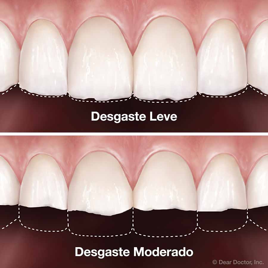Desgaste Dental.