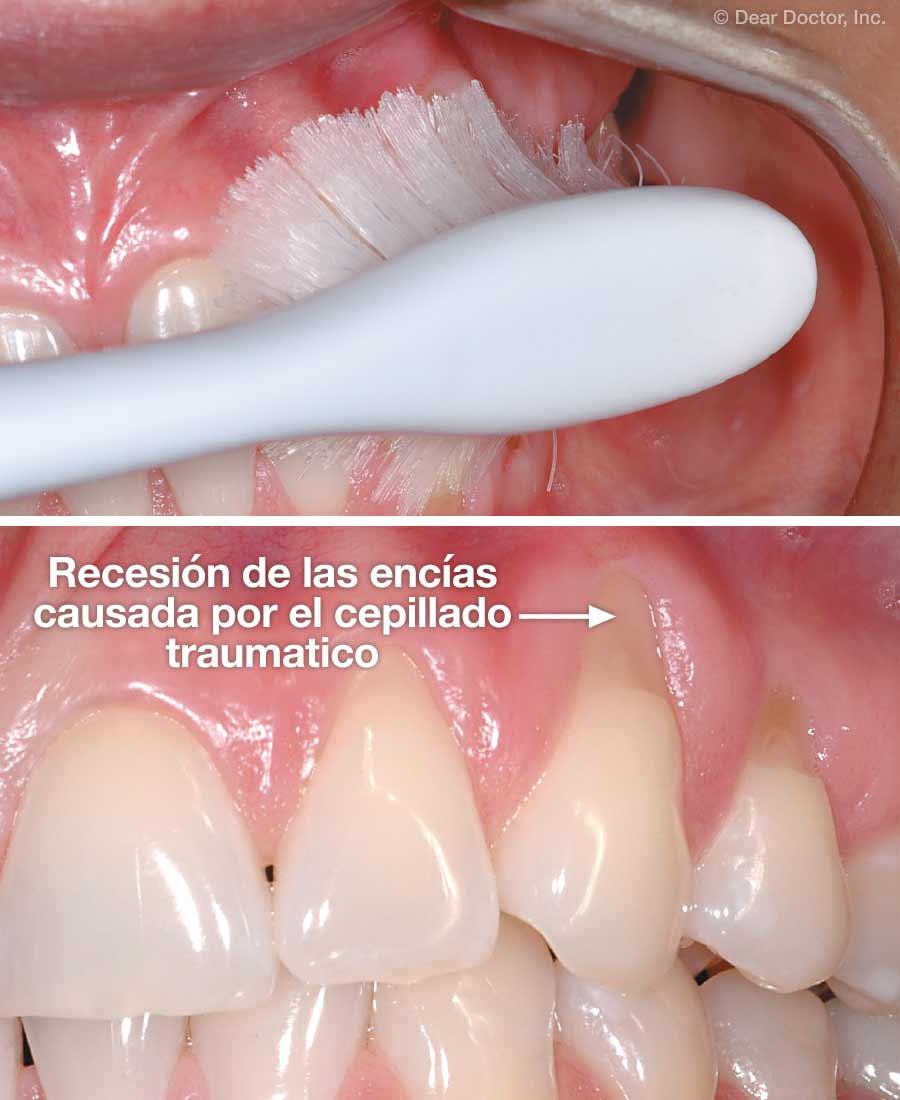 Recesión de las encías causada por el cepillado traumatico.