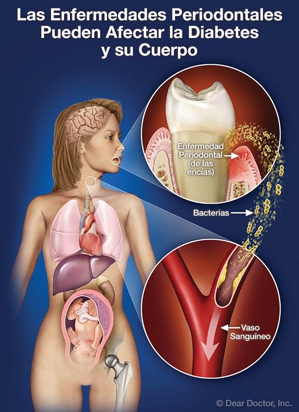 Las enfermedades periodontales pueden afectar su diabetes y su cuerpo.