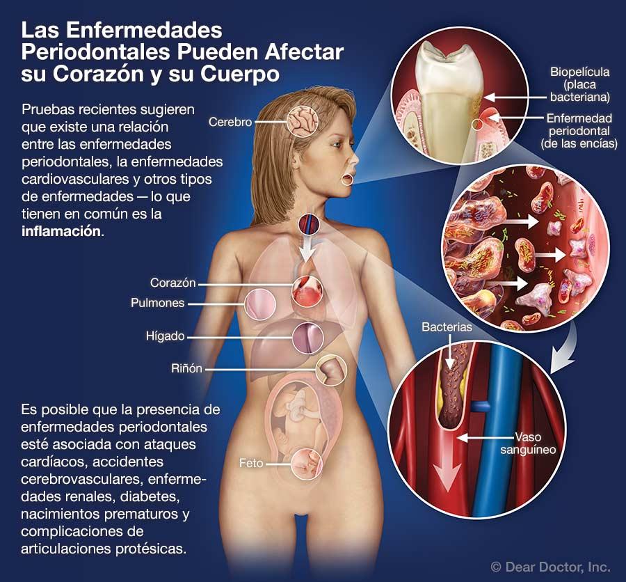 Las Enfermedades Periodontales Pueden Afectar su Corazón y su Cuerpo.