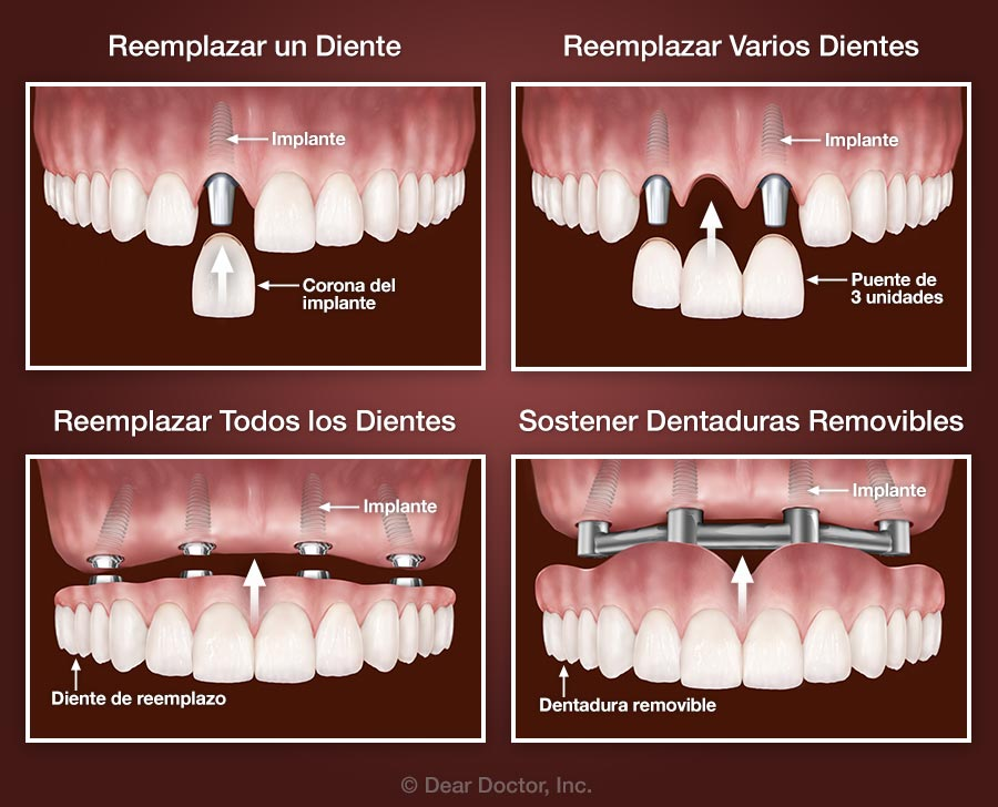 THINNERS IN DENTISTRY PDF