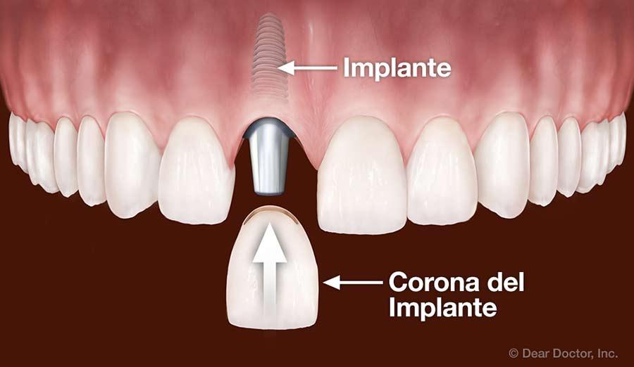Corona del implante.