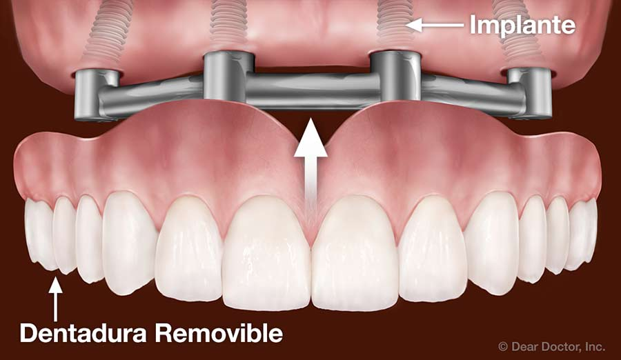 Dentadura removible.