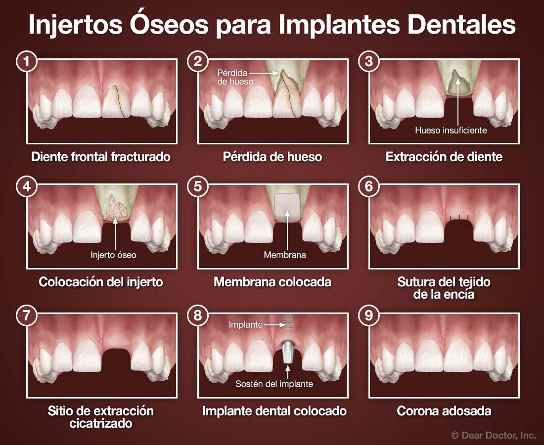 Injertos Óseos para Implantes Dentales.