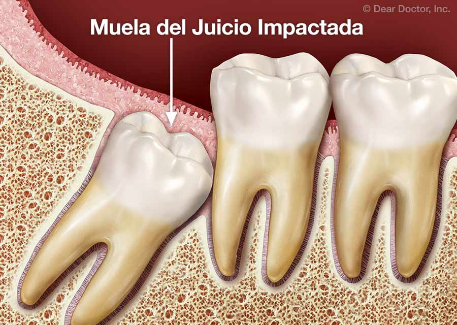 Muelas Del Juicio Dentist Chicago Il Dental Spanish