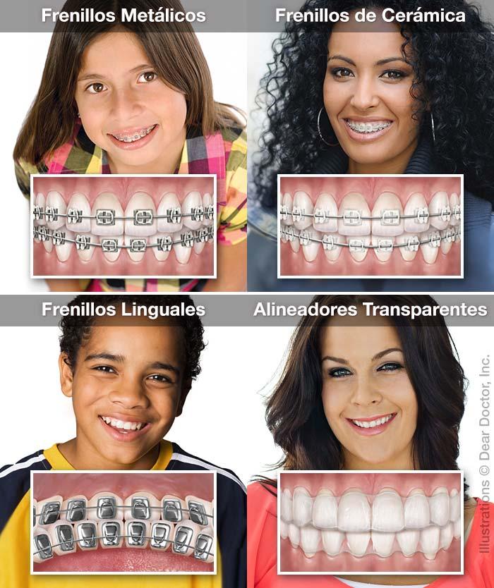 Tipos de Aparatos de Ortodoncia.