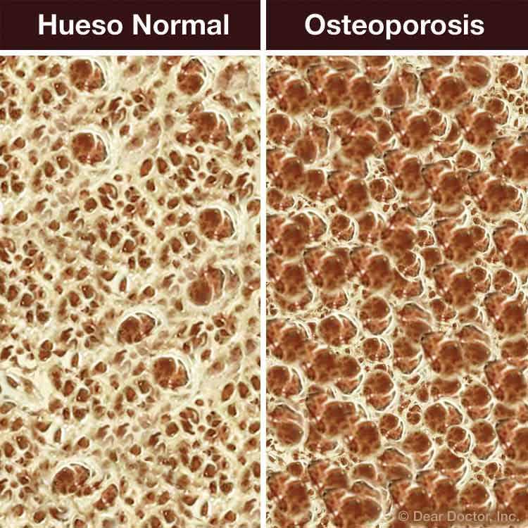 Hueso normal vs Osteoporosis.