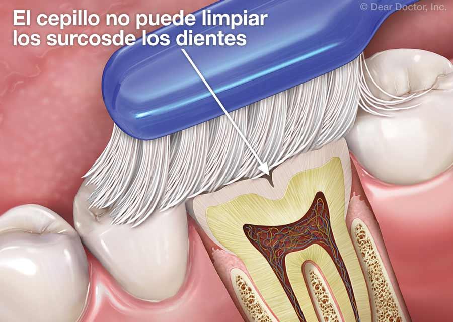 El cepillo no puede limpiar los surcosde los dientes.