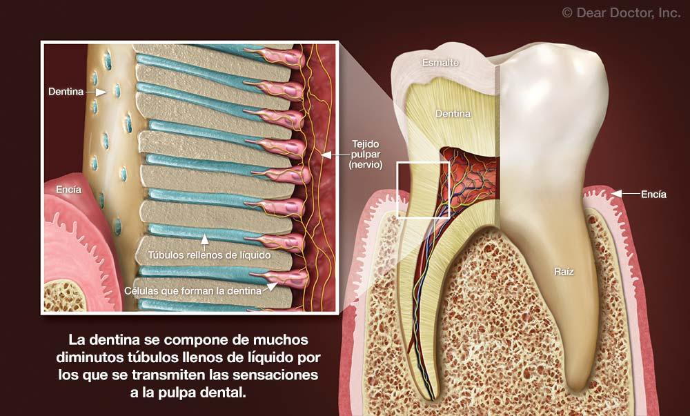 Ampliación de la Dentina.