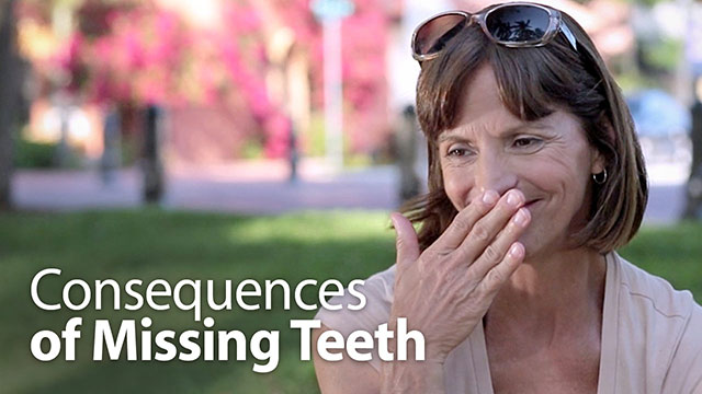 Consequences of Missing Teeth Video