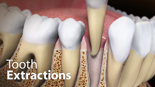 Tooth Extractions Video