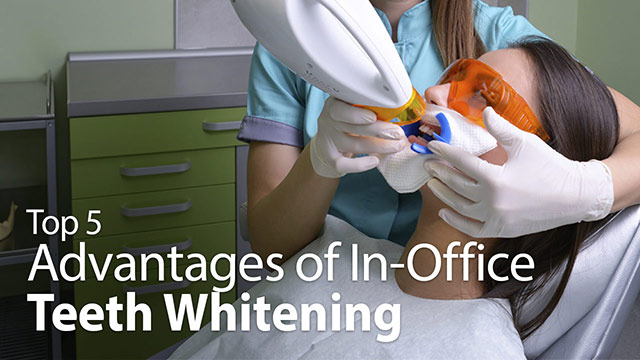 Top 5 Advantages of In-Office Teeth Whitening Video
