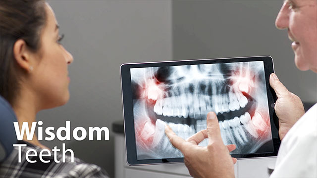 Wisdom Teeth Video